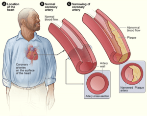 Coronary_heart_disease-atherosclerosis